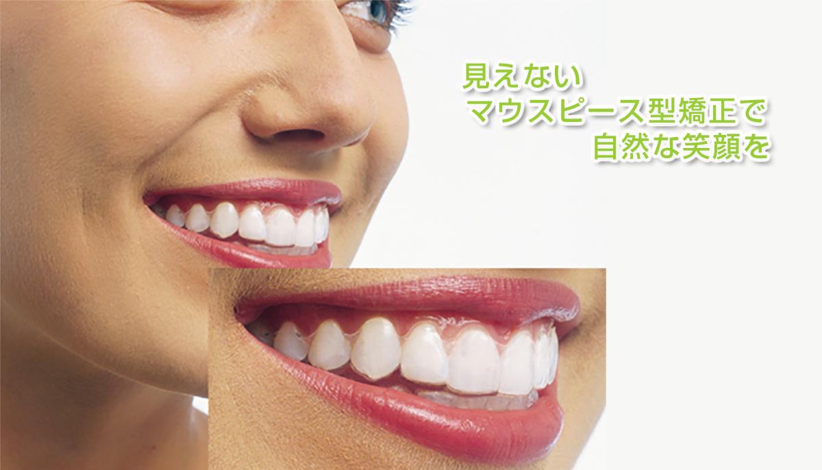 が 子供 歯科 矯正 ない お金